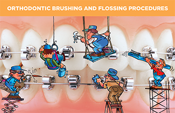 Orthodontic Brushing and Flossing Procedures cards(#430-103)