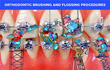 Orthodontic Brushing and Flossing Procedures cards(#440-204, 440-213, 430-103)