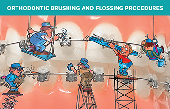 Orthodontic Brushing and Flossing Procedures cards w/Damon Brackets(#440-213)
